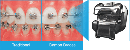 ooli-damon-vs-traditional-braces