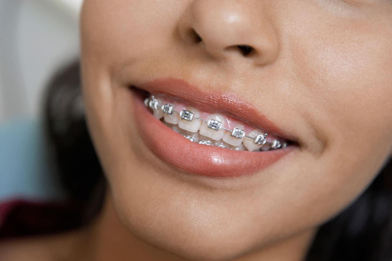 Traditional-braces-ooli-orthodontics