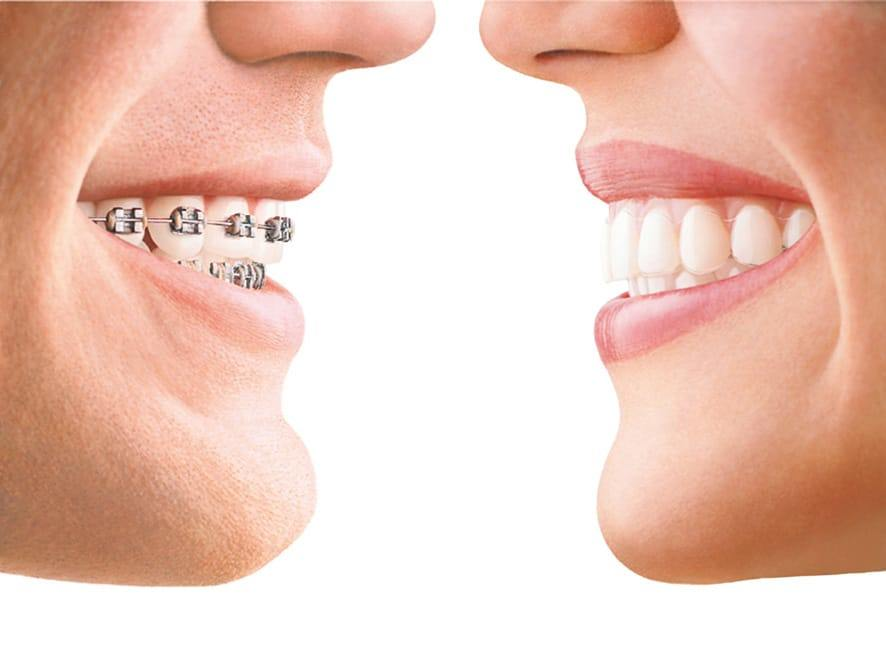 Invisalign and braces visual comparison