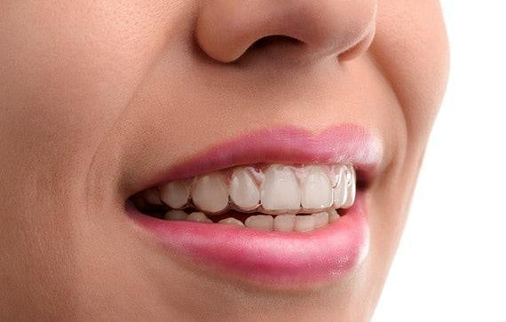 You must wear your Invisalign Aligners constantly