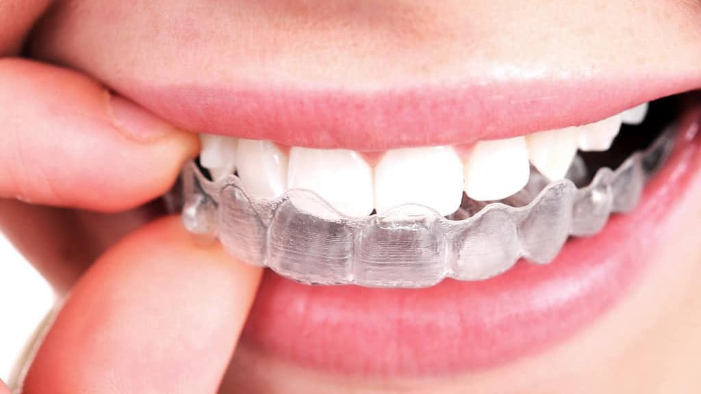 Invisalign braces in Phoenix