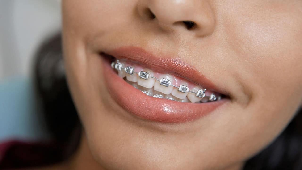 Traditional metal braces in Phoenix
