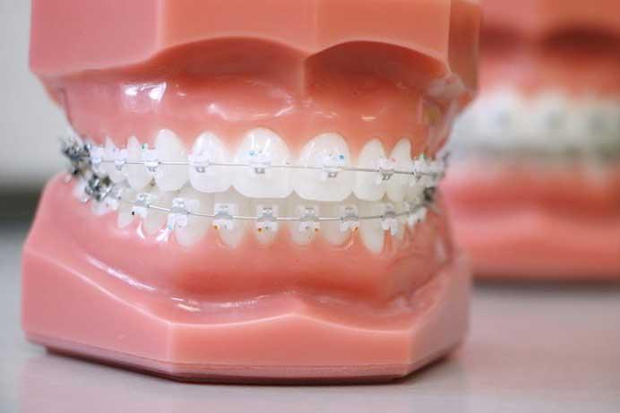 damon-clear-self-ligating-braces-orthondist-phoenix