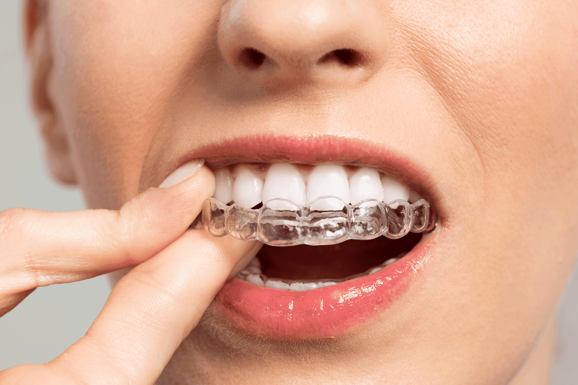 Invisalign-braces-price-match-phoenix-orthodontist
