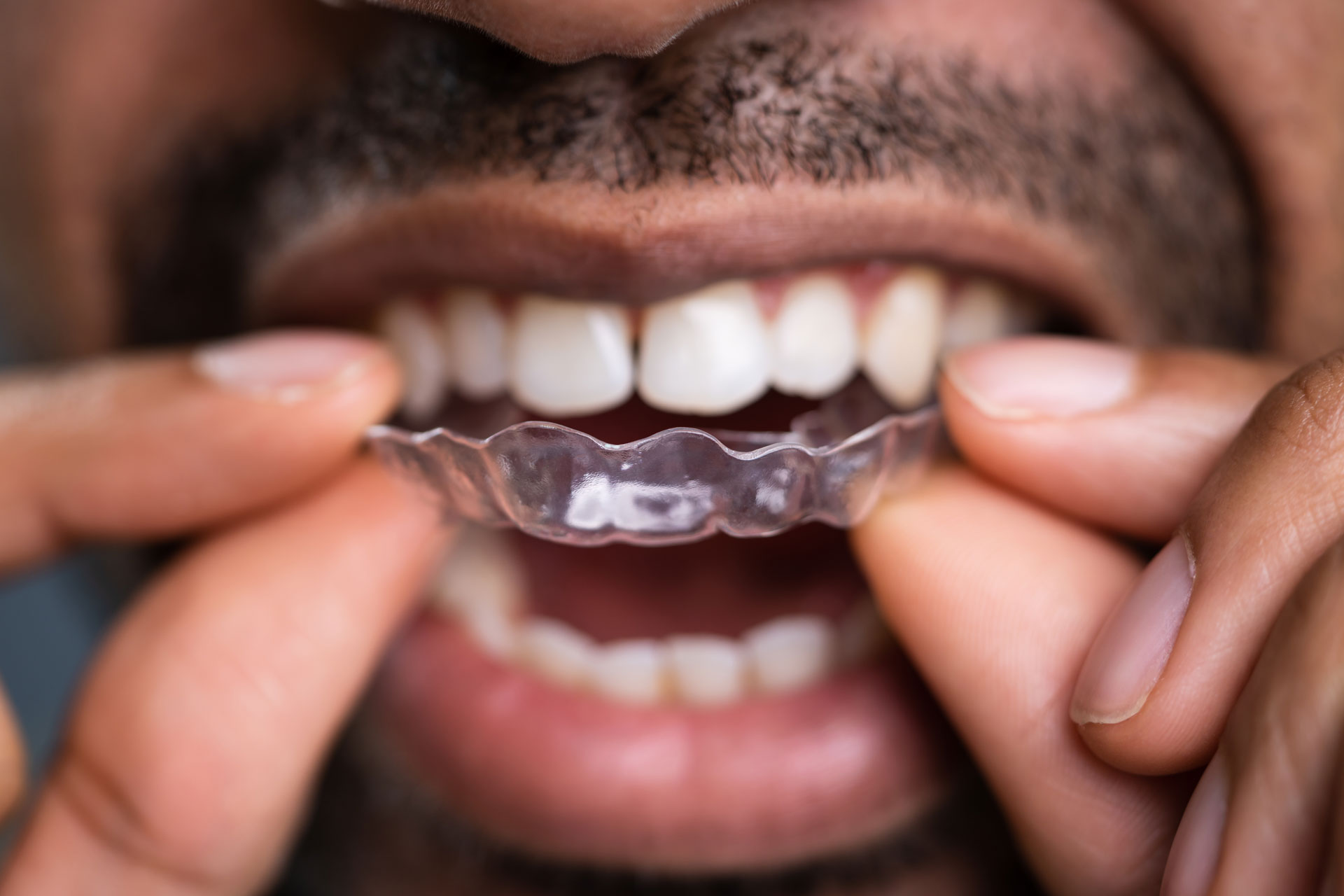 Wearing-aligners-constantly-living-with-invisalign
