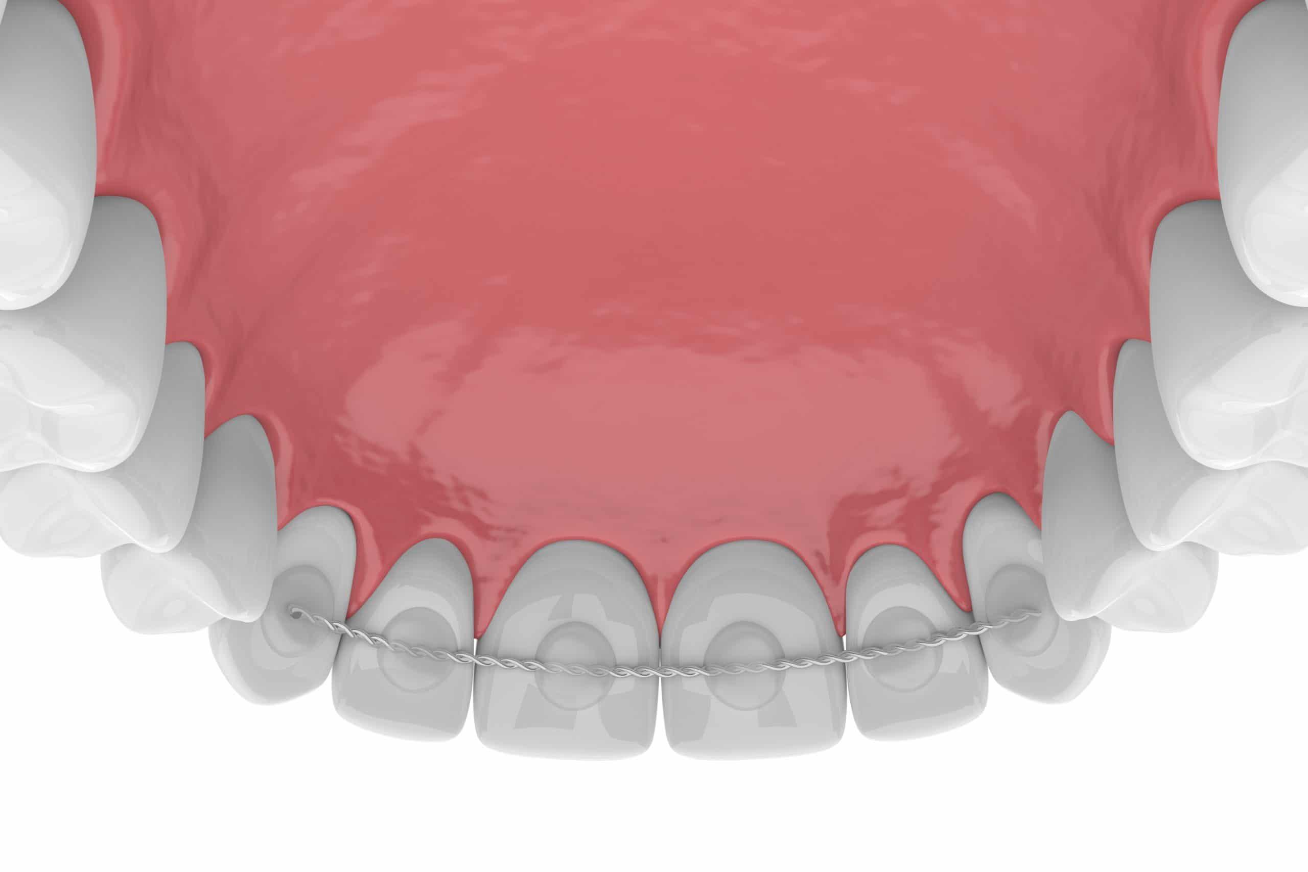 3d render of dental bonded retainer on upper jaw